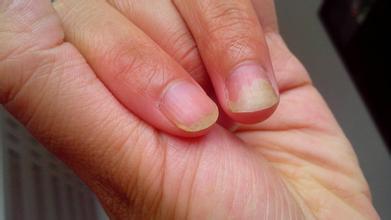 Шелушение кожи пальцев на ногах у ребенка