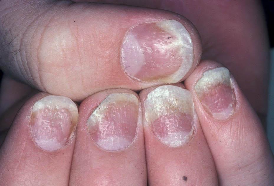 Грибок у детей на ногтях рук причины