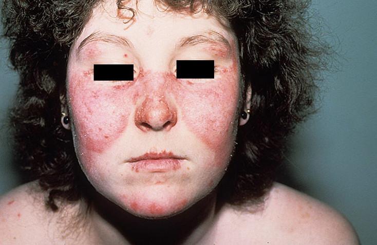 Болезнь Соединительной Ткани Диффузная
