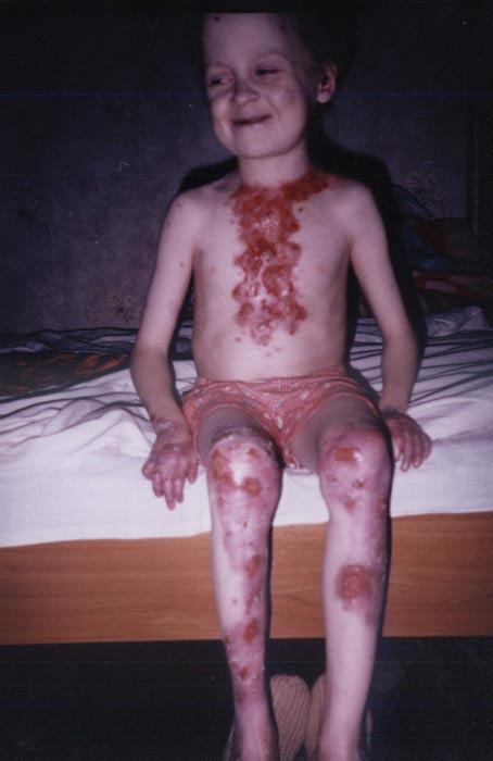 Синдром Нонна фото