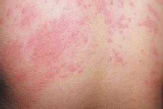 аллергия на шее у взрослого фото