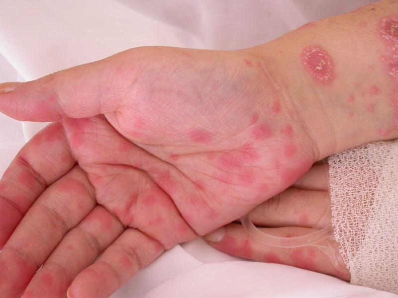 Лечение Псориаза Асд 3