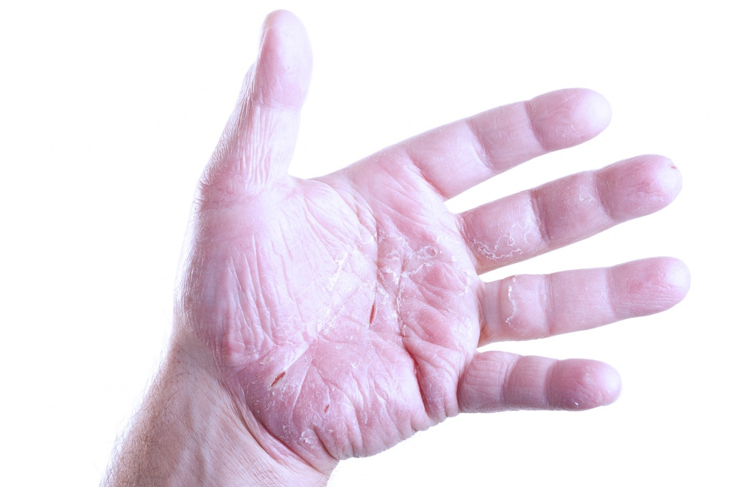 средства от аллергии четвертого поколения