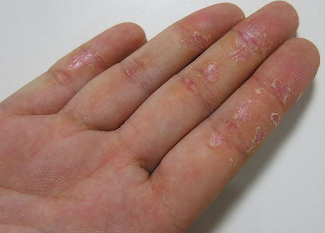 бывает ли аллергия на гель лак