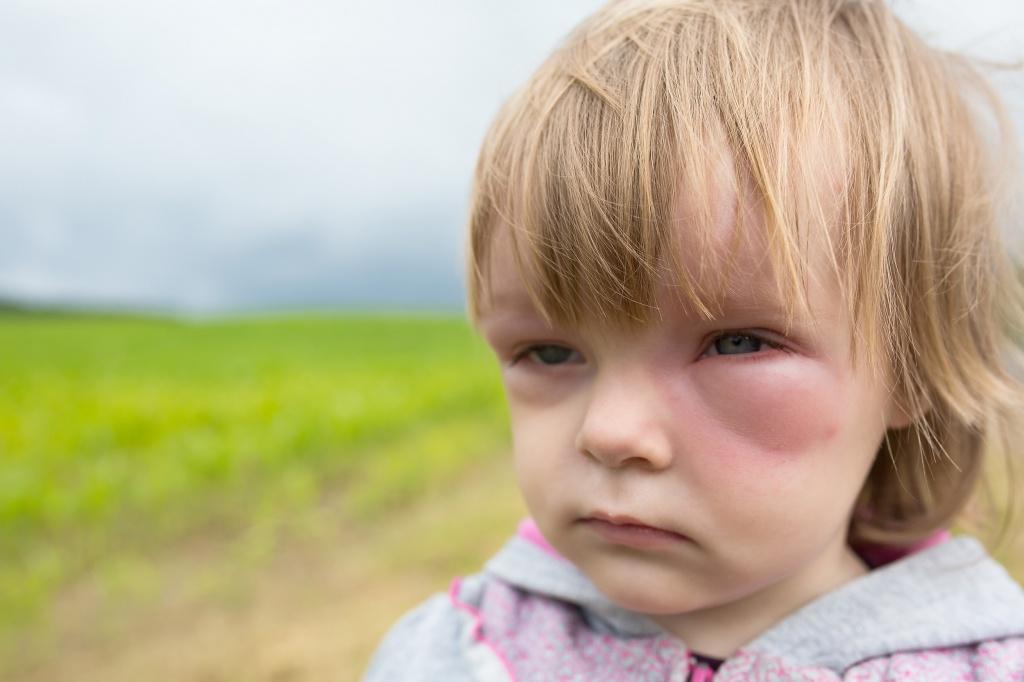 аллергия на щечках фото