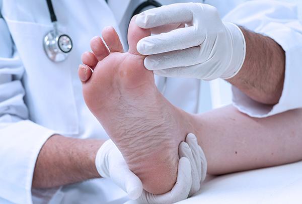 экзема на ногах фото