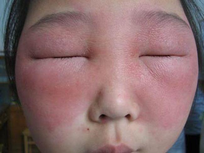 кожная аллергия на лице