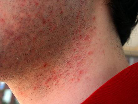 Как сделать волосы после бритья мягкими