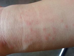 У ребенка на ногах аллергия фото у
