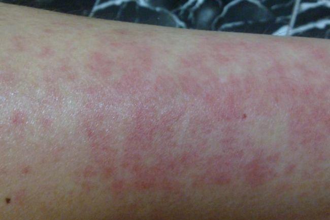 сыпь аллергическая на руках фото
