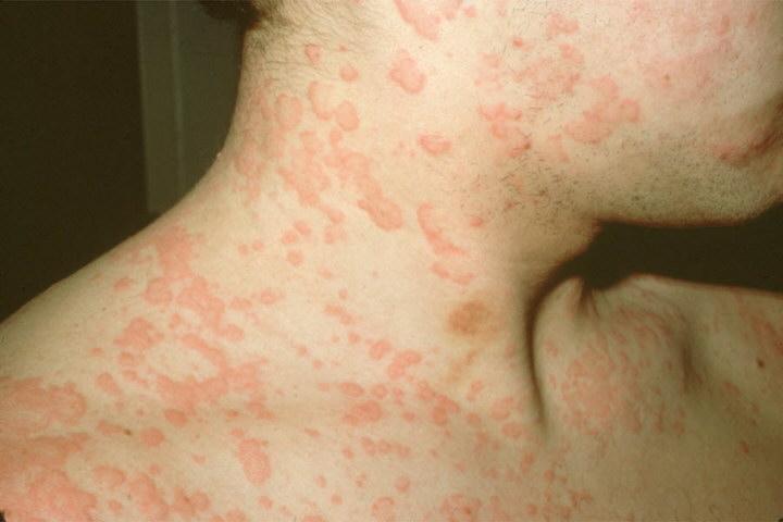 пищевая аллергия на руках у взрослого