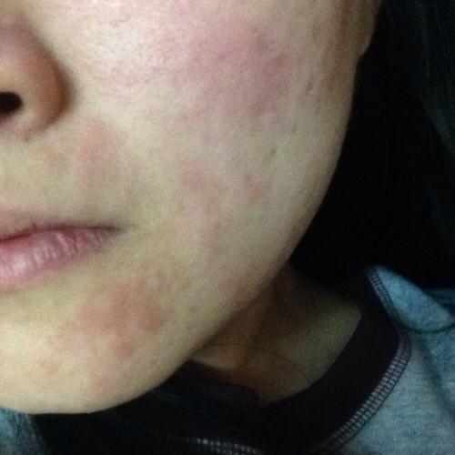 Аллергия на холод на лице лечение препараты