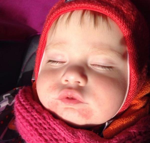Диатез у детей - лечение, симптомы и причины