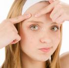 аллергия на ла кри крем