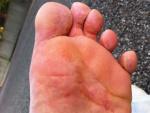 Микотическая экзема на ноге, фото