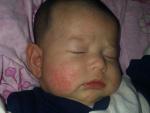 Диатез у грудного ребенка на лице