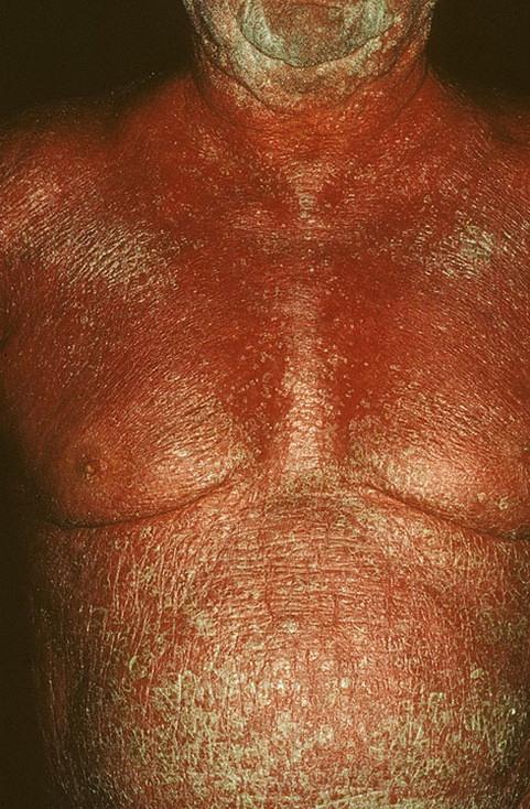 поражает псориаз кожу