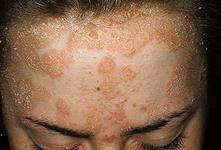 псориаз волосистой головы