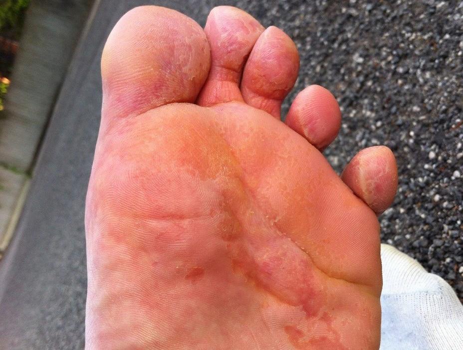 экзема на ступнях ног