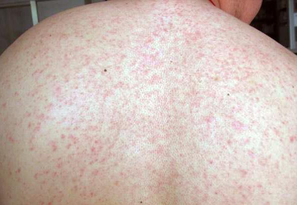 Сыпь на теле и лице у взрослых. Причины и лечение сыпи.