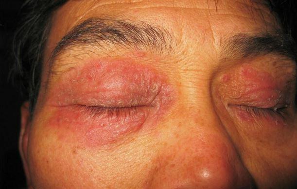 Нейродермит на лице: причины, симптомы (фото), лечение