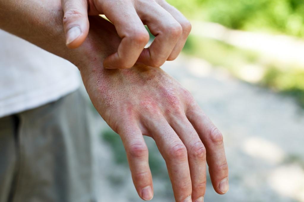 Авитаминоз на руках: причины, лечение, профилактика