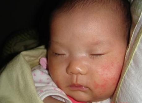 препараты от аллергии 3 поколения список