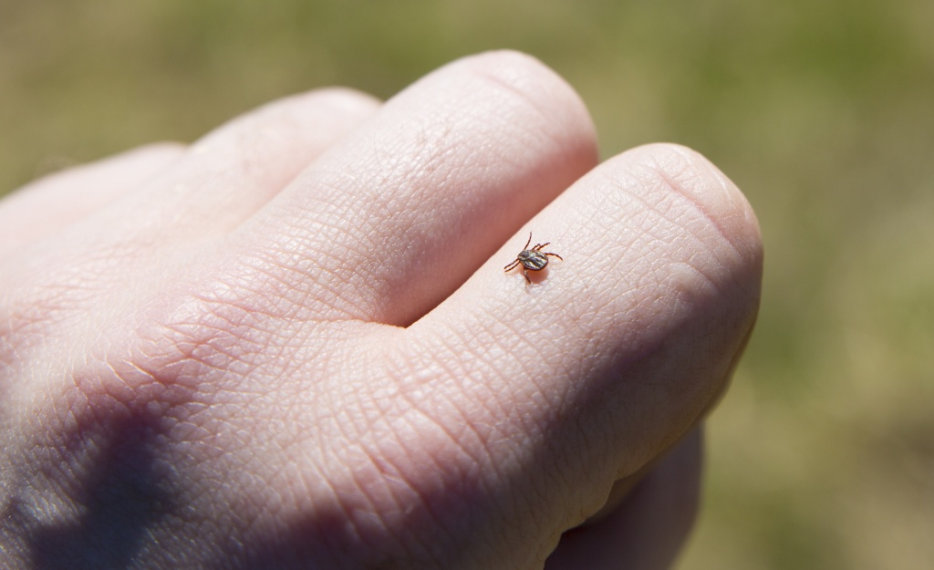 Аллергия на гель-лак чем лечить этот недуг и основные симптомы