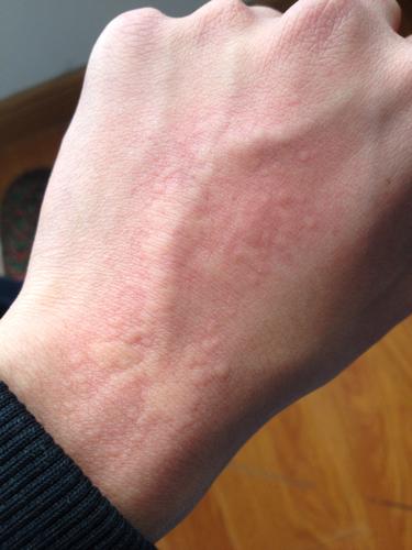 аллергия на руках симптомы