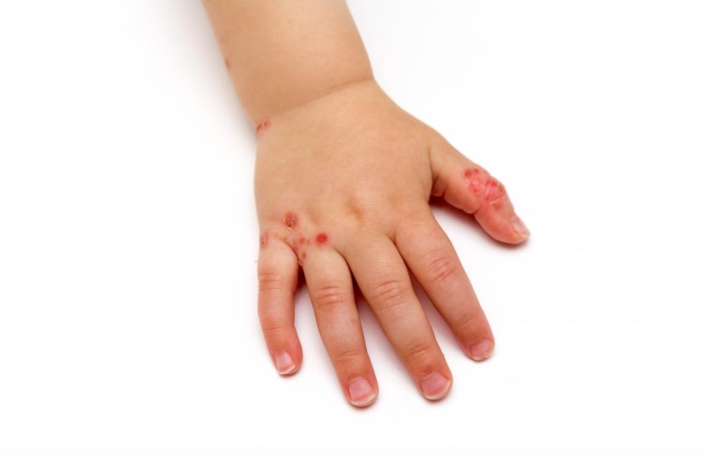 Сыпь на ладонях у ребенка, причины, фото
