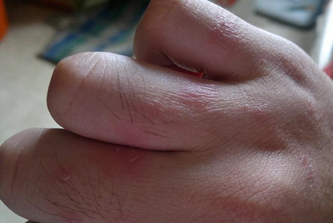 Экзема на руках: лечение, причины фото