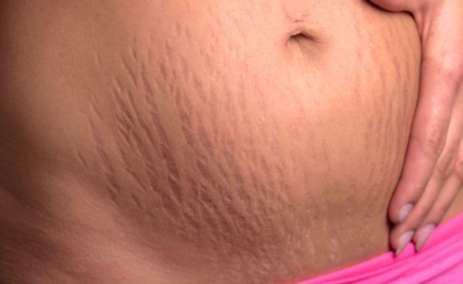 Сухая шелушащаяся кожа у ребенка фото