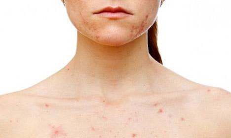 фото аллергическая сыпь