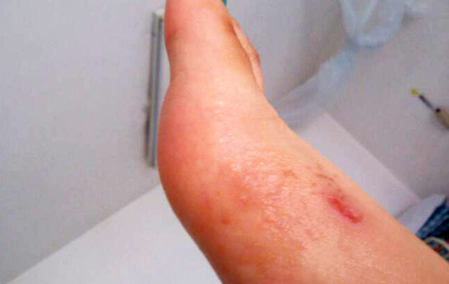 Лечение экземы на ногах