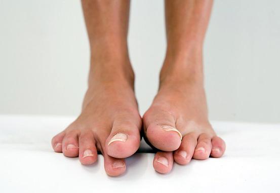 потница на ногах - фото