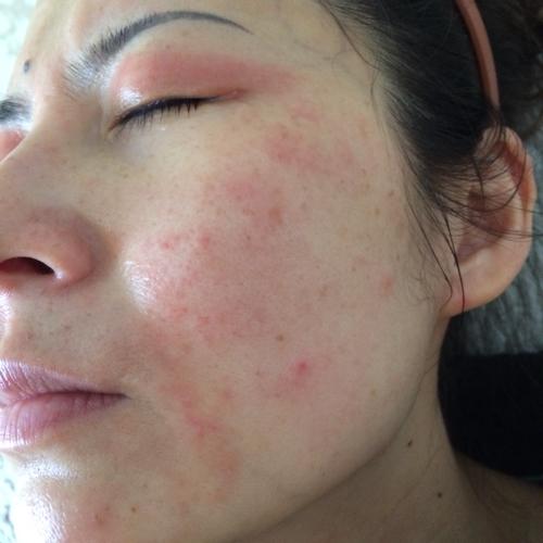 аллергия на веках - фото
