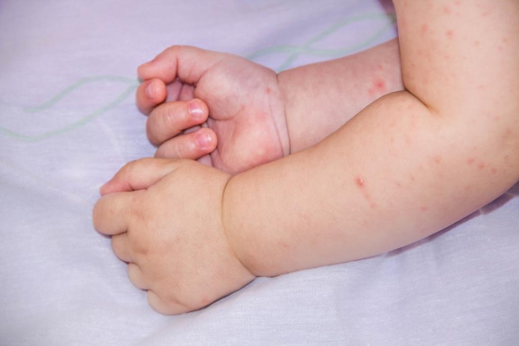 Сыпь на ладонях у ребенка, фото