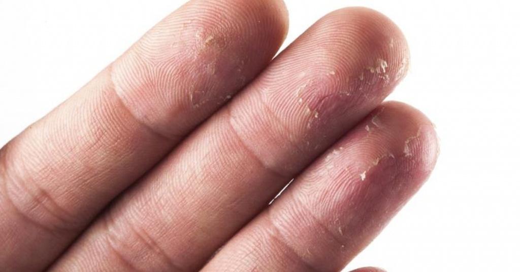 Масло корицы от грибка ногтей
