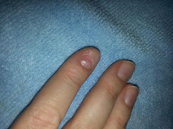 Руки и ногти при авитаминозе, фото