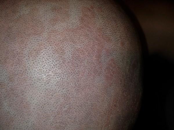 Себорейный дерматит, фото