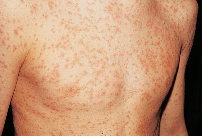 инфекционные болезни сопровождающиеся сыпью, фото