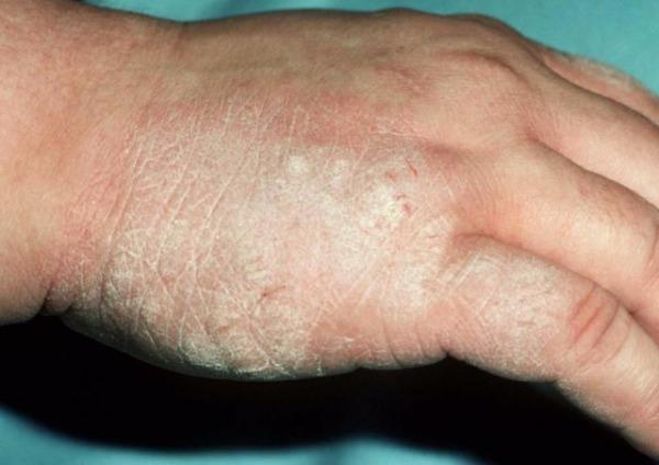 Почему появляется псориаз на руках и как его лечить
