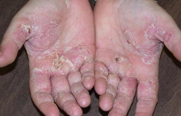 Псориаз ногтей лечение народными средствами основные рецепты