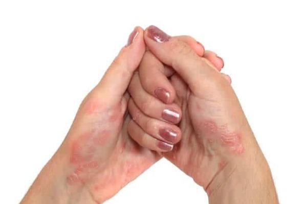 Фото псориаза на руках, пальцах, и ногтях. Симптомы и признаки.