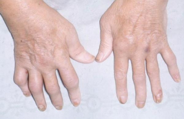 Причины нездоровых ногтей
