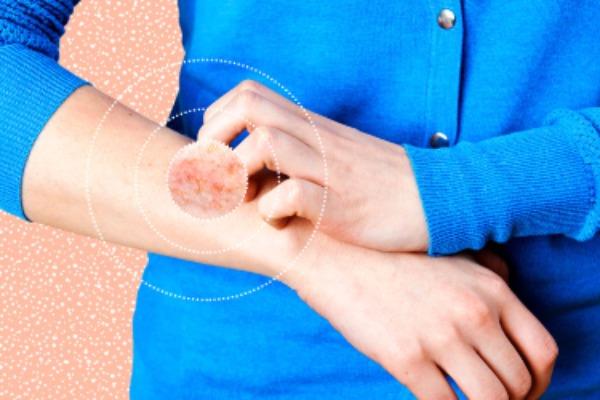 Начальная стадия псориаз пальцев рук