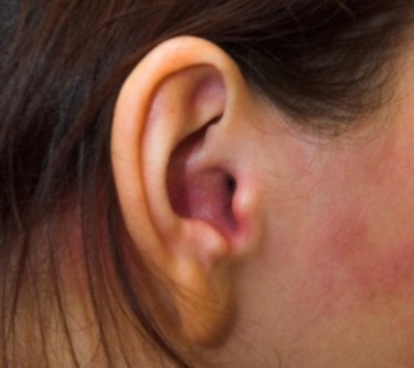 Псориаз в ушах, фото