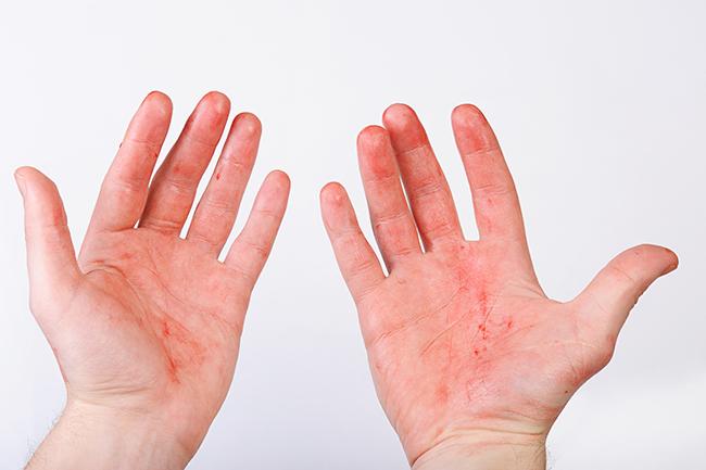 Как выглядит потница на руках, фото