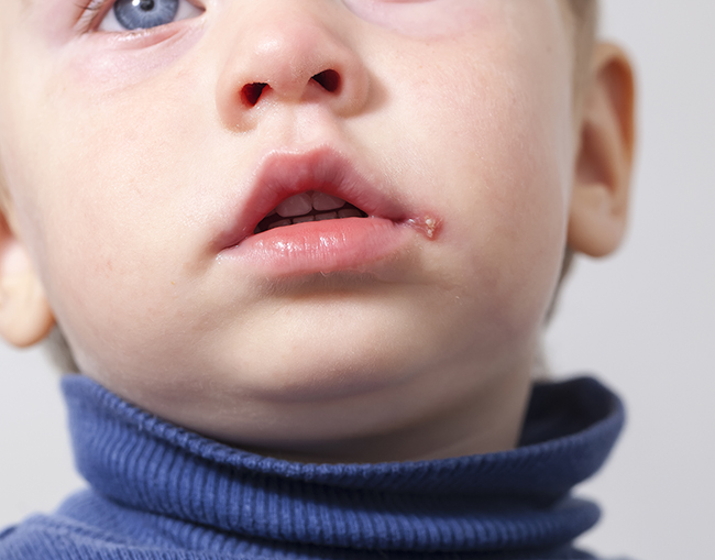 Герпес на губах у ребенка, фото
