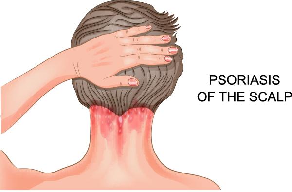 Лечение псориаза на голове народными средствами, фото